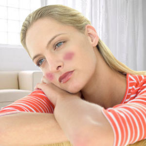 All about lupus symptoms!